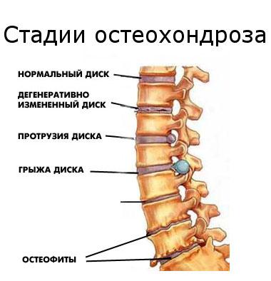 Salv osteokondroos Jala liigeste trauma