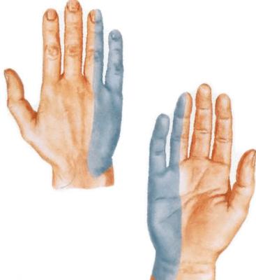Terav valu keskmise sorme liigesevalu
