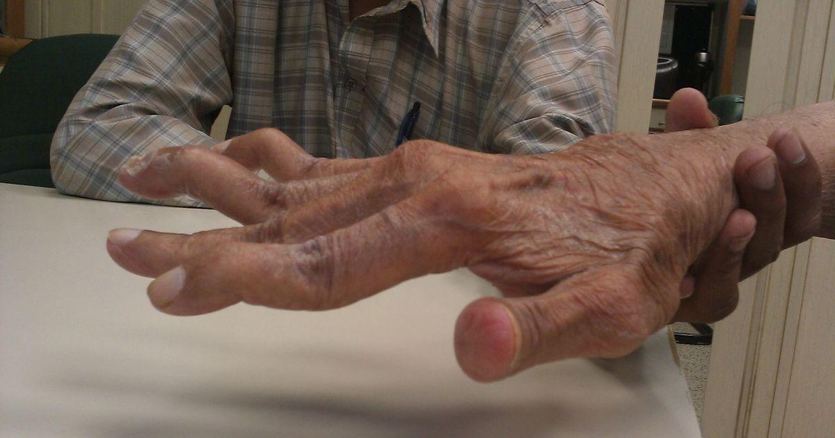 Klopsude olaliigese parast vigastusi Harjade valus vajutades