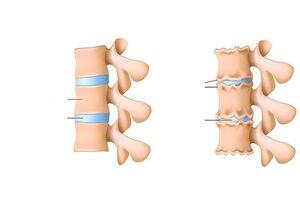 liigeste kriit ja haigused