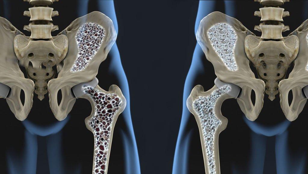 Artroosi raviks