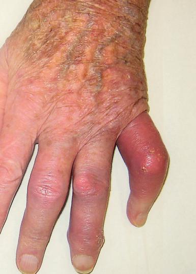 liigesevalu kreem Artroosi ravi rahvameetodi abil