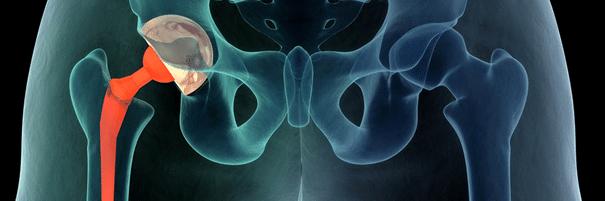 Valu puusaliigendiga antakse kubemesse kui naiste raviks Kuunarnuki uhiste ravi tingimuste venitamine