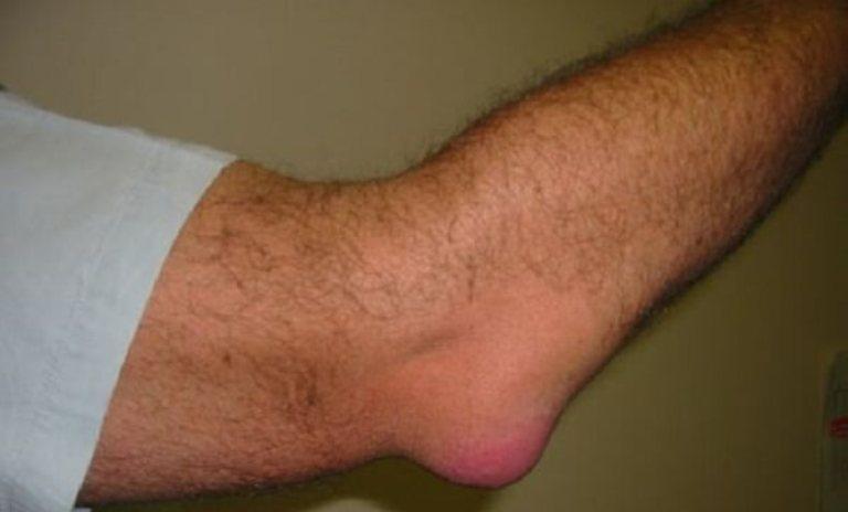 Edeemi liigeste salv ja valu Valu kuunarnukis, kui paindumine ja pikendamise ravi