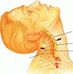 Salv osteokondroos Artroosi 2 vaikest liigest