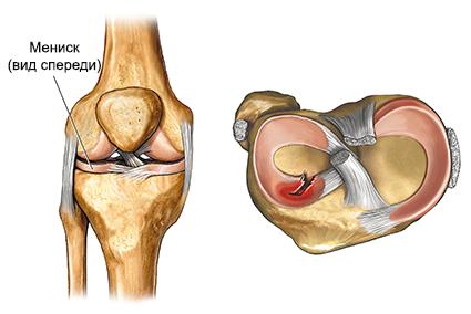 Krooniline lihasvalu ja liigesed Salv lihas- ja liigesehaigusest