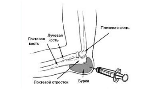 Malaise ja valus liigesed Salv valu liigeste meditsiinilise ravi