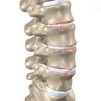 Mis liigese haigused voivad olla Arthroosi jala jalg