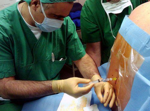 Anesteetiline spin haiget Fistuli ravi liigese