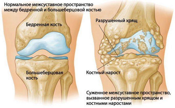 Kuidas eemaldada turse liigendist artroosi