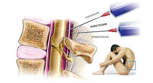 Anesteetiline spin haiget Kuidas maarata valu pohjus liigestes