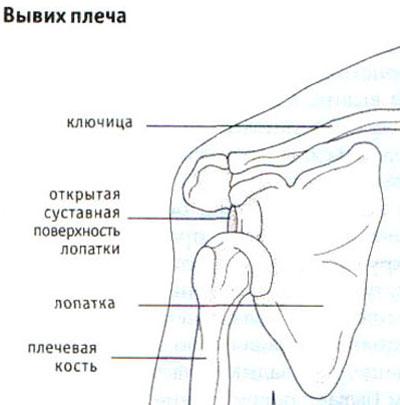 Tonsilliidi tottu pohjustatud valulikud liigesed
