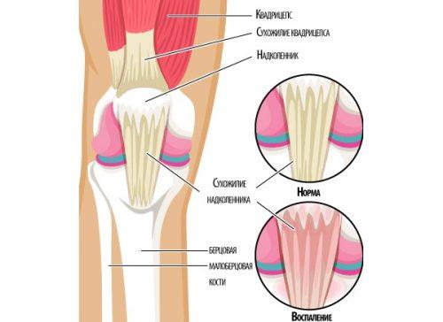 Meetodid liigesehaiguste raviks Olaliigese artroosi raviks meetodid