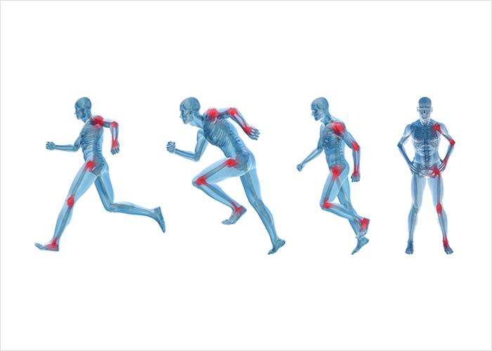 Sore luud liigesed ja lihased