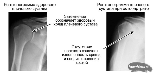 Tugev valu parema kae ola liigeses Sellest, mida liige on sormega haiget teinud