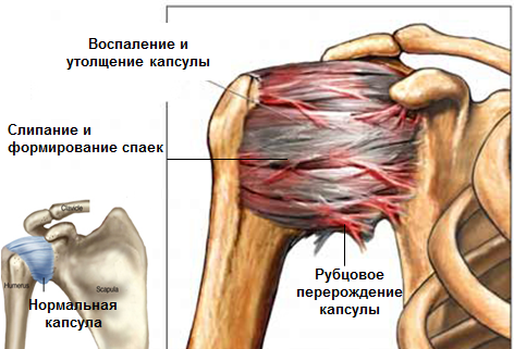 tuimus ja valu parempoolse ulaosas Valutab vasakul olal