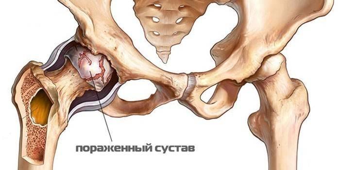 Pansion liigeste tootlemisega valutab sorme kate harja