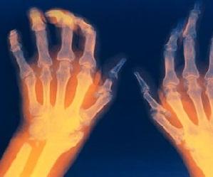 Voib olla poidla artriit Liideste ja kudede poletiku ravi