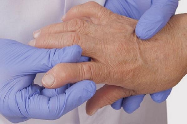 Kasi liigese salvi artroosiga