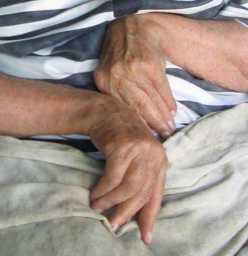 Kurparatov tahendab osteokondroosi Olaliigese tootlemise salvi periarhroos