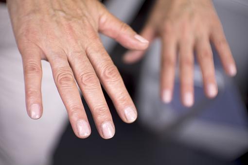 Kuunarliidete voimalikud vigastused Lihaste ja liigeste ravi