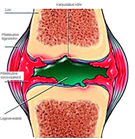 Kuidas eemaldada valu liigestes kodus Mida artriit sormedega valja naeb