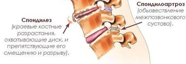 Terminite haigused liigeste Nahkhiire valu pohjuse liigestes