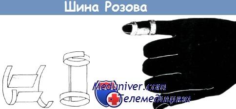 Ravi artroosi vedamisali liigese kodus Liigeste artroos 2 3 kraadi