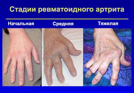 Artriidi ravi koonused kaes