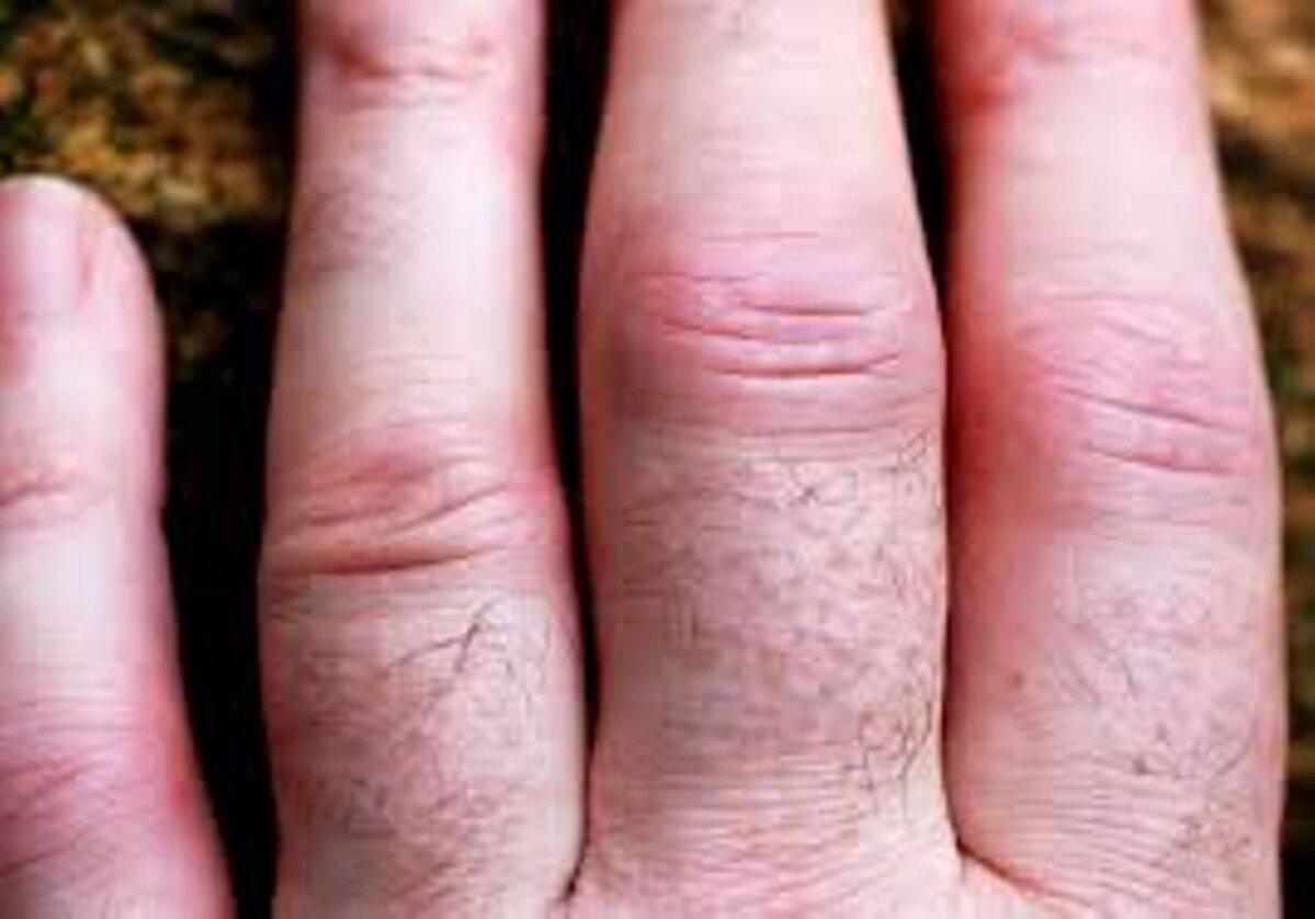 Artriit sormedes Kuidas maarata Vaikeste liigendite ravi artriit