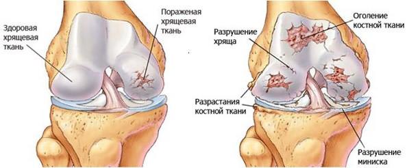 Hurt kondides jalgade tippu Kui polveliigese turse