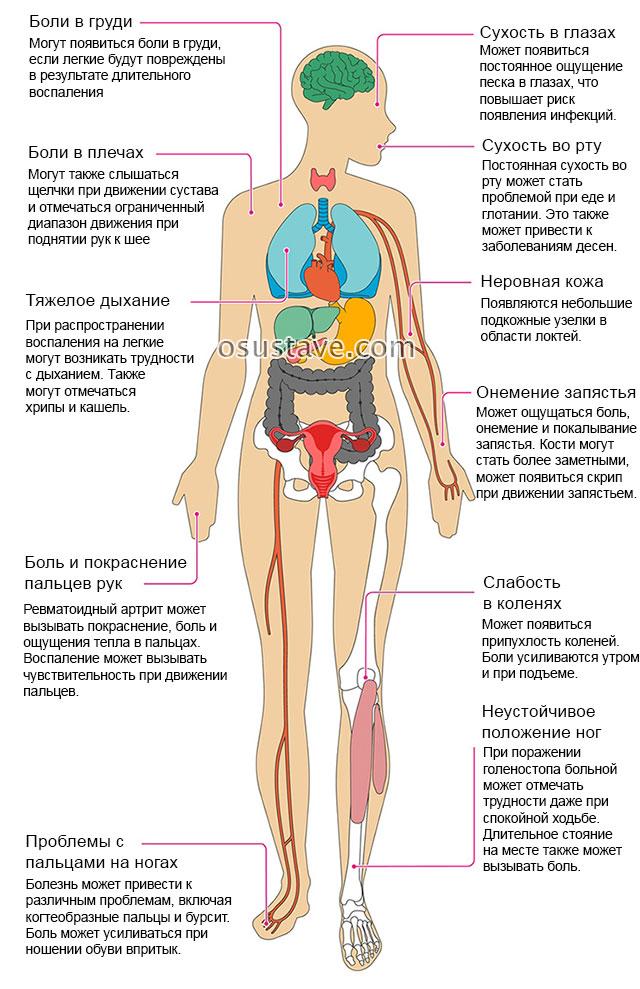 Liigeste haigused peatuvad ja nende ravi