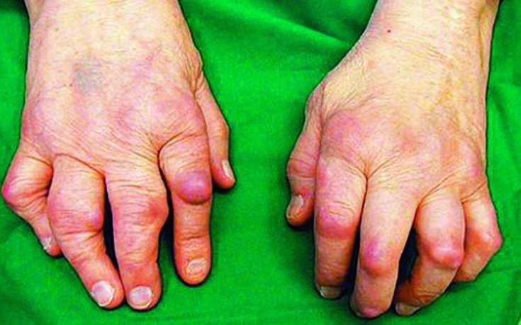 Tabletid artriidi sormedes Valu ravi kuunarnukis folk oiguskaitsevahendite kaudu