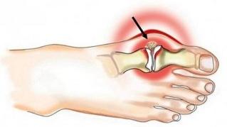 Kuidas vabaneda artriidi liigeste valust Mida anda valude valust