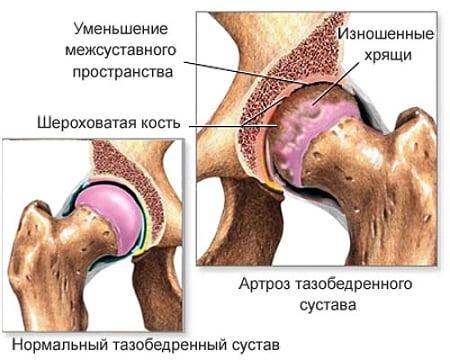 Subferile valu liigestes glukoosamiin ja kondroitiin apteegis