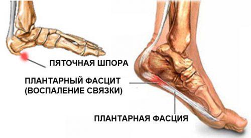 Valu jala jalgsi poidla jalamil Film liigeste raviks