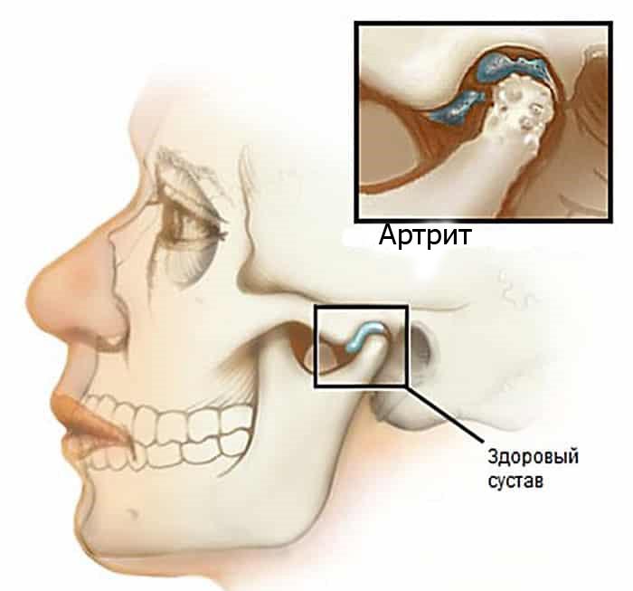 Susteemne artroosi ravi Film artroosi raviks