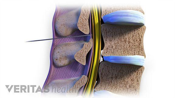 Dexametasoon Spin Hurt HIP-liite ravi ja anesteesia