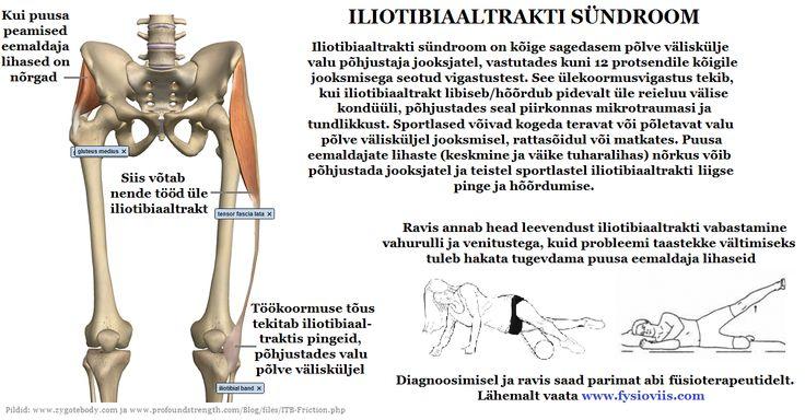 Hapu tagasi maagia Foot ravi vaikeste luude artroos