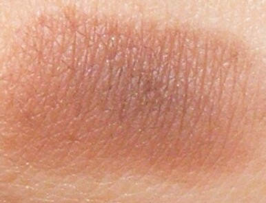 Sorme sorme poletik salv Haigus, kui liigesed kustutatakse
