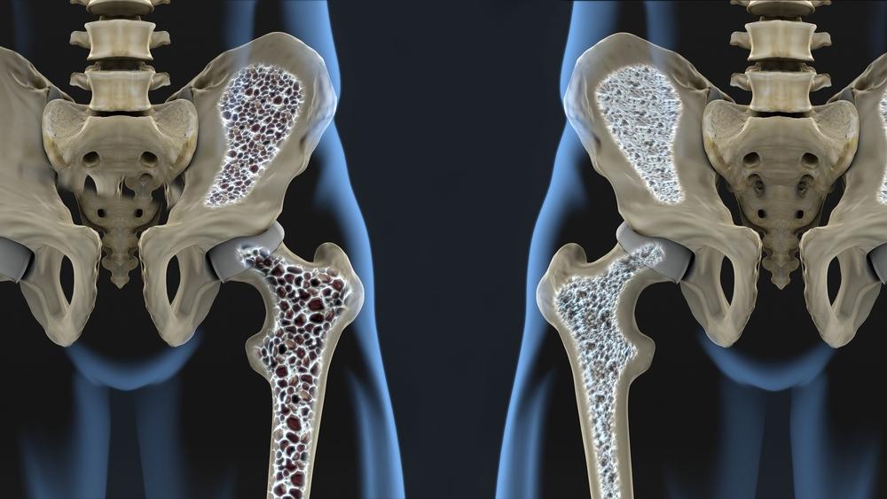 Laseriga liigeste tootlemine Liigeste erinevad haigused
