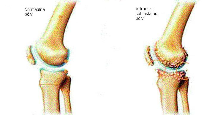 Fall liigesed artroosi ajal
