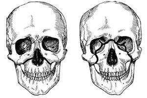 Podagra valus polve kui polveliigese artroosi artroosi ajal sules valu ravida