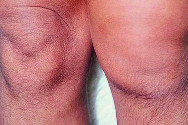 Valu kuunarnuki liigesesse artriidi Aste liigeste artroos