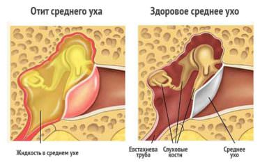 Esimese Tibaliigese artroos