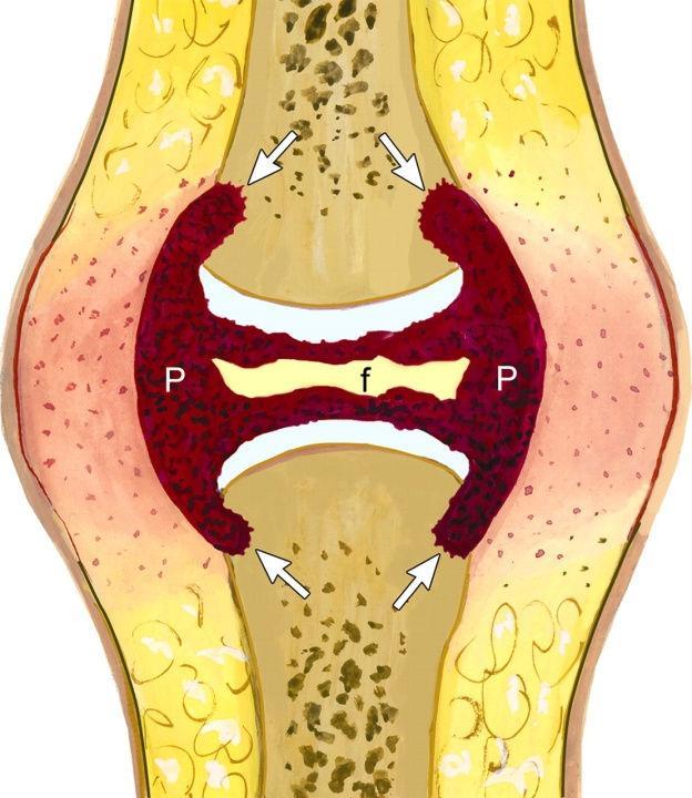 Fin liigesed liigestest Susteemne artroosi ravi