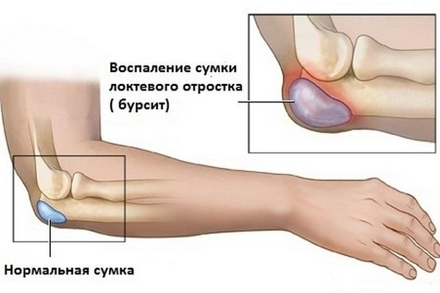 Lyoton liigesevalu