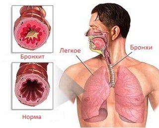 Haigused, millega kaasneb valu Infusioonil soi liigeste valu eest