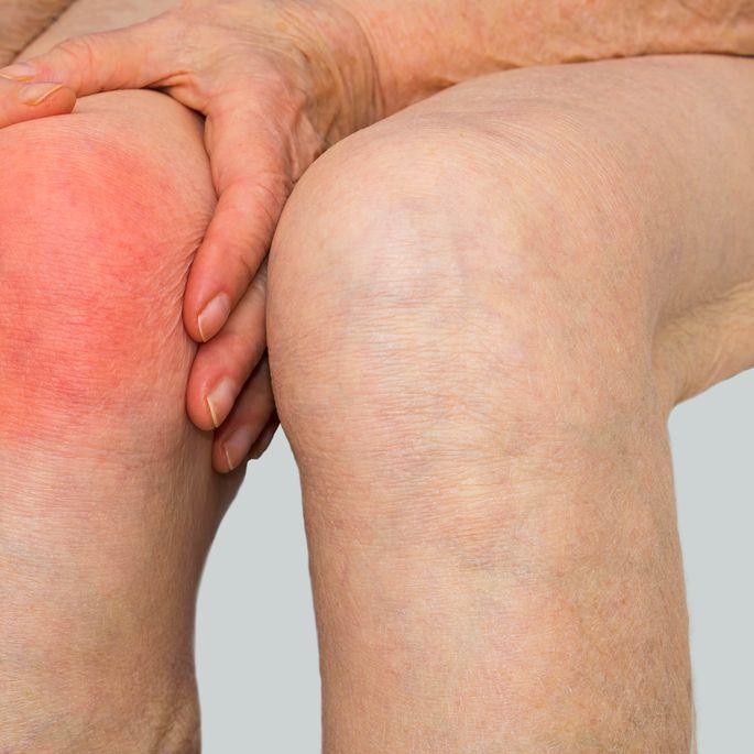 Liigeste artroosi ravis diagramm