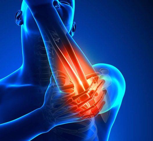 Kuidas maarata ola liigese artroosi Almag-01 liigeste raviks